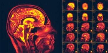 Vad är hjärnans neuroplasticitet? Förmågan till förändring