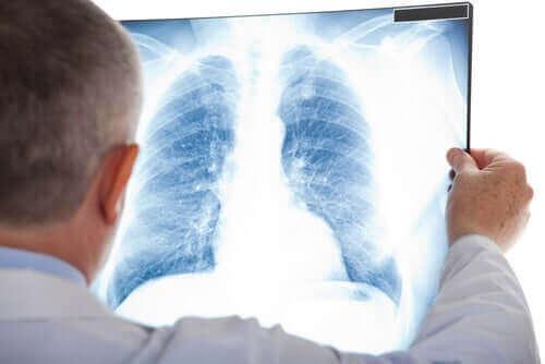 Läkare tittar på en röntgenbild av en bröstkorg.