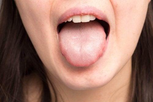 Kvinna med ett tjockt saliv sträcker ut tungan.