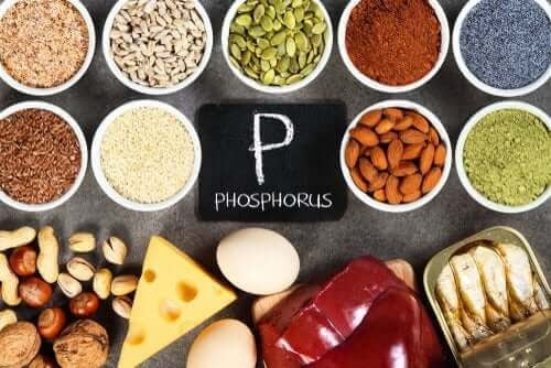 Hyperfosfatemi: en obalans i fosfornivåerna