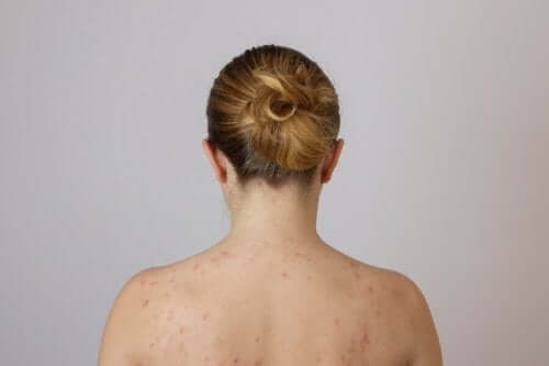 akne på ryggen
