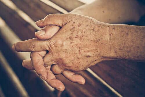 Ett par händer tillhörandes en äldre person.