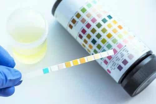 Vad kan man upptäcka med ett urinprov?