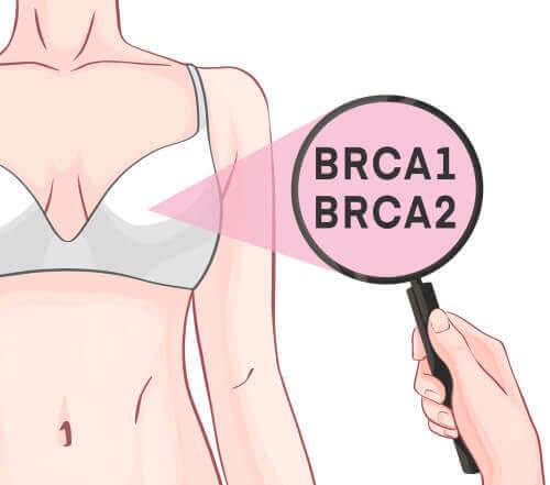 Generna BRCA1 och BRCA2 och bröstcancer