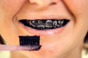 Risker med aktivt kol för den orala hälsan