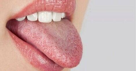En tunga med prickar på.