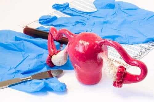 Lär dig om olika typer av hysterektomi