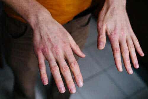 Torra och spruckna händer: så skyddar du dem mot kyla