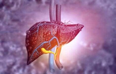 allvarliga leversjukdomar: en sjuk lever