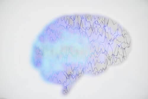 illustration av ett epileptiskt anfall