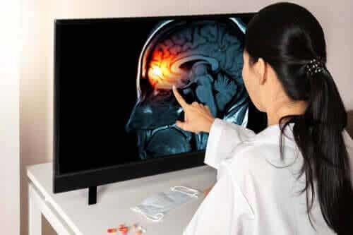 Lär dig allt om hjärnhinnorna