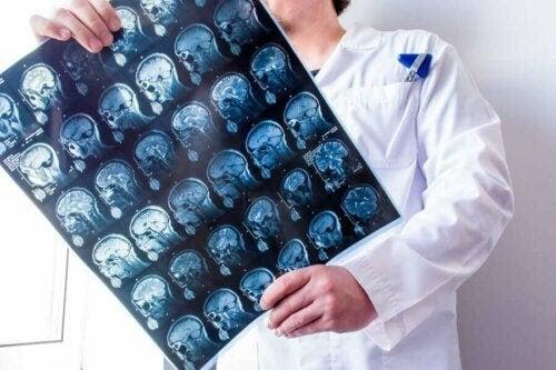 allt om hjärnhinnorna: läkare studerar hjärna