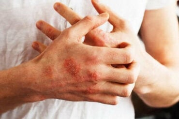 Livsmedel som kan hjälpa till att kontrollera psoriasissymptom