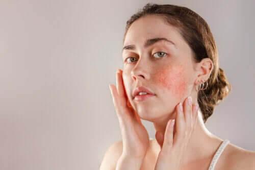 Reaktiv hud: symptom, orsaker och behandling
