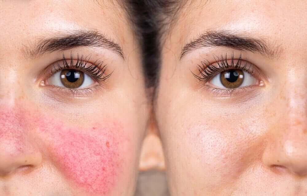 en kvinna med Reaktiv hud och en med normal hud