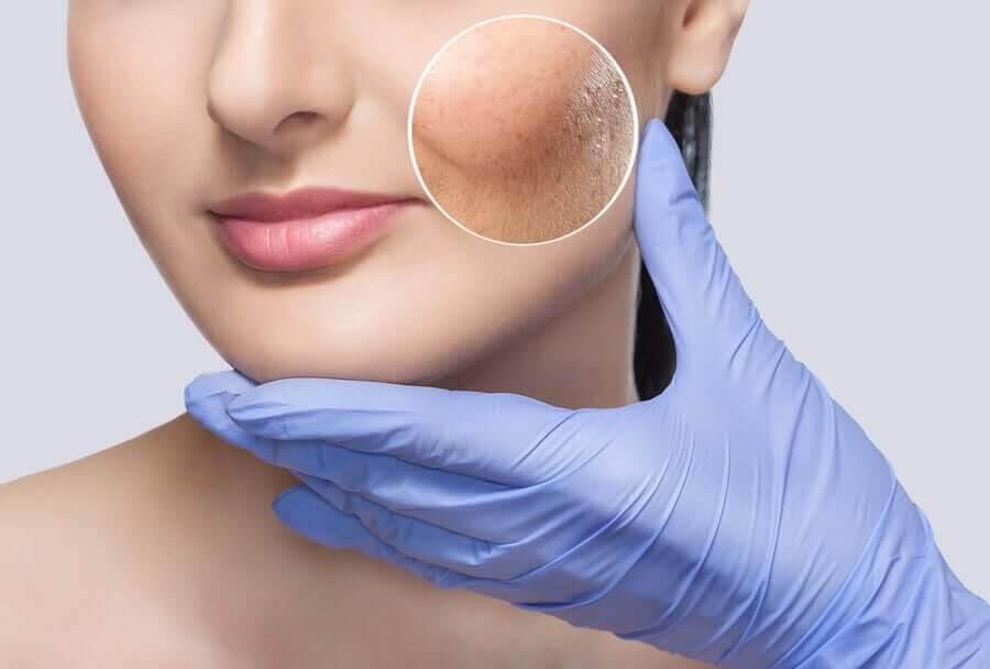 kvinna med hudproblem