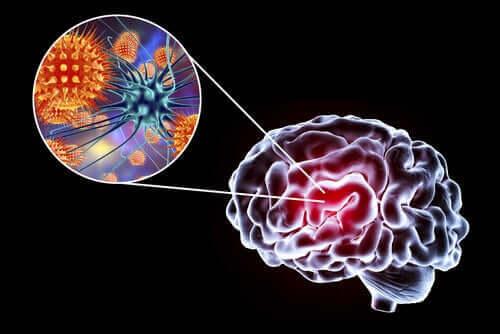Encefalit: symptom, orsaker och behandling
