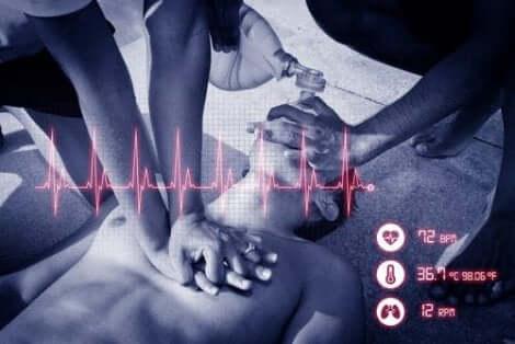 En person har fått hjärtstillestånd och andra utför HLR.
