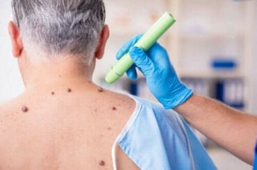 Vårtor som blöder: orsaker och behandlingar