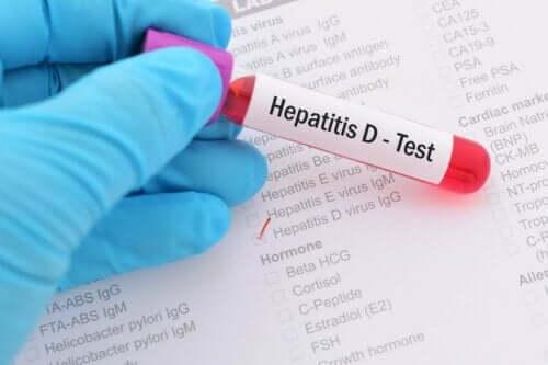 Blodprov för hepatit B