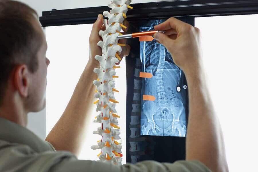 Metastaser i skelettet: symtom och behandlingar
