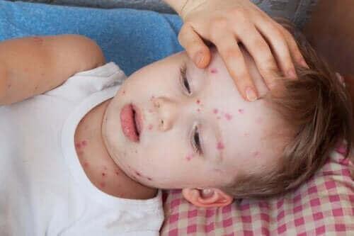 Hur du kan behandla nässelfeber hos barn
