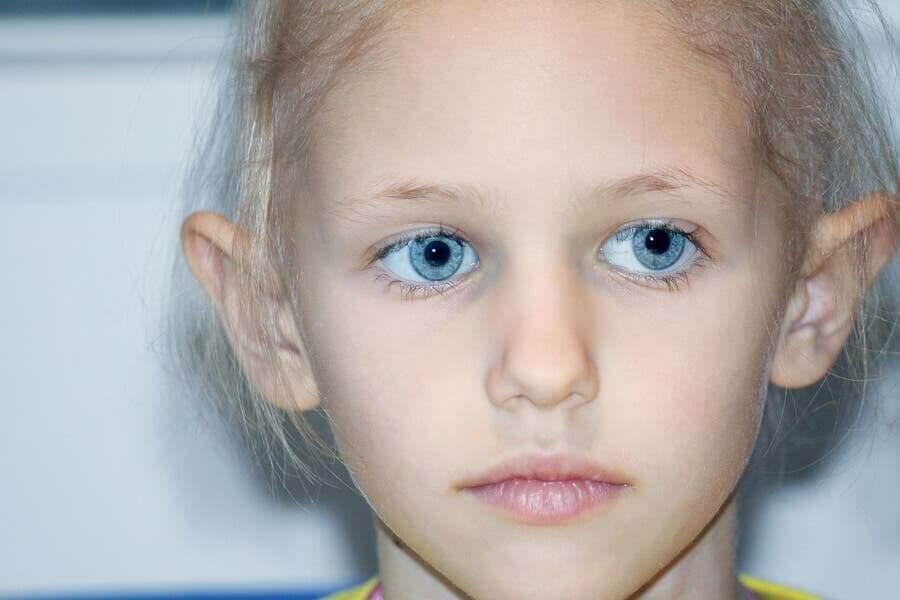 Ett barn med ögonsjukdomen retinoblastom