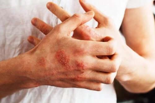 Sarsaparill kan användas mot sår på händerna.