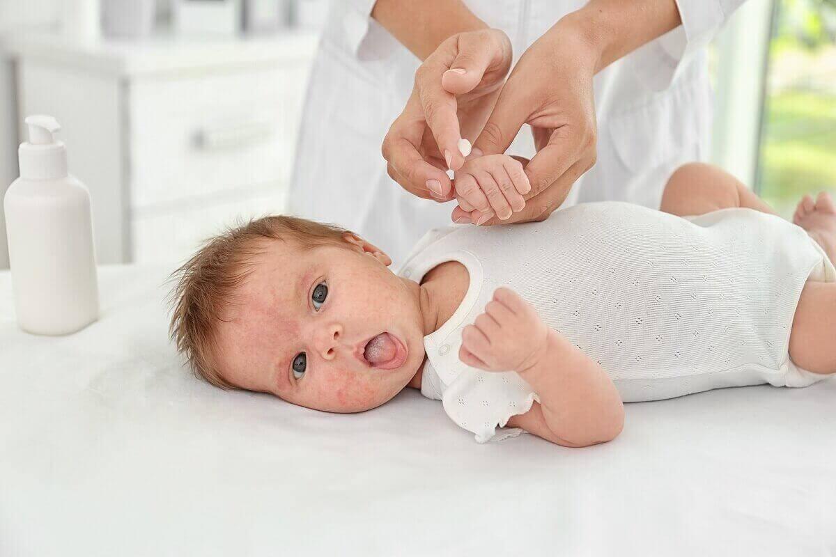 hudvård för ett nyfött barn