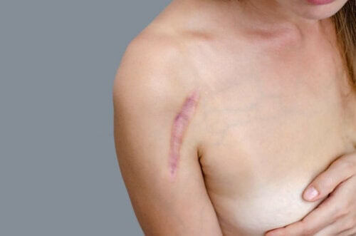 ärr under sommaren: kvinna med ärr på skuldran