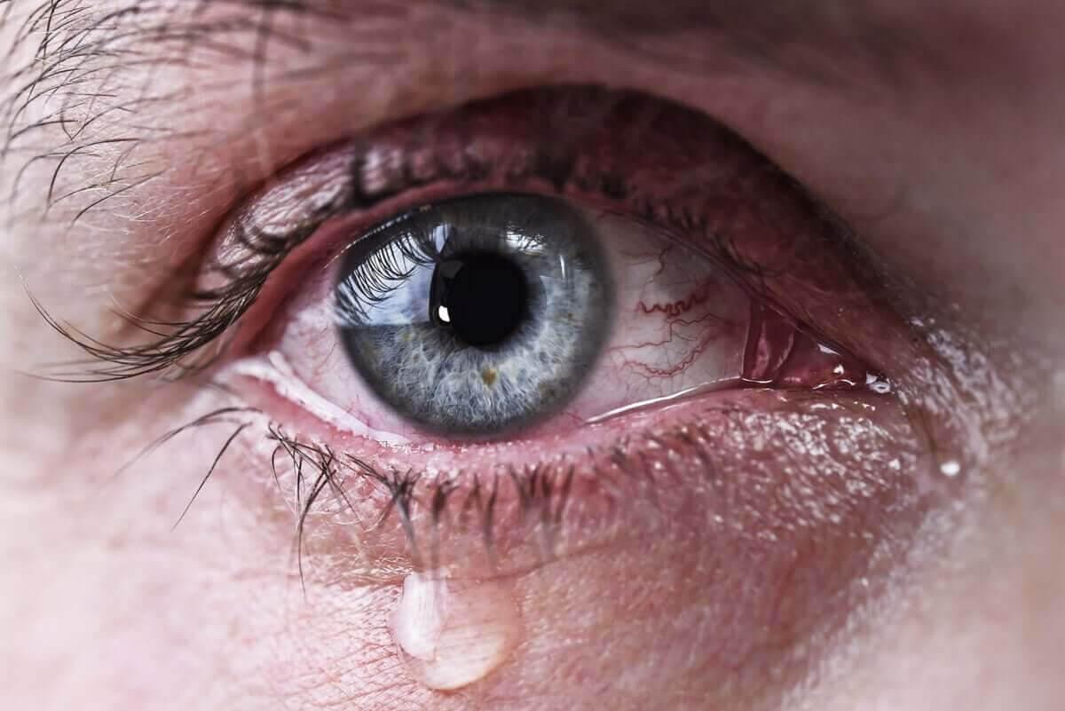 rinnande ögon