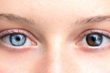 Förändringar i ögonfärgen kan vara orsak till oro