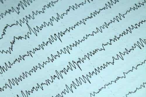 Så kombinerar du epilepsi och amning