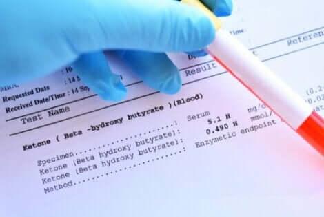Qtrilmet: Resultat av ett blodprov.