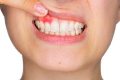 Inflammation av tandkött