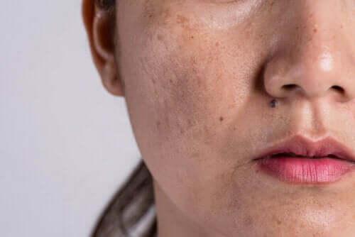 Kvinna med hudfläckar i ansiktet.