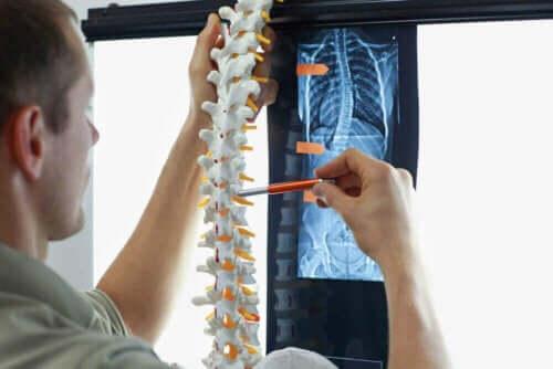 Skolios hos barn: Läkare undersöker en modell av ryggraden.