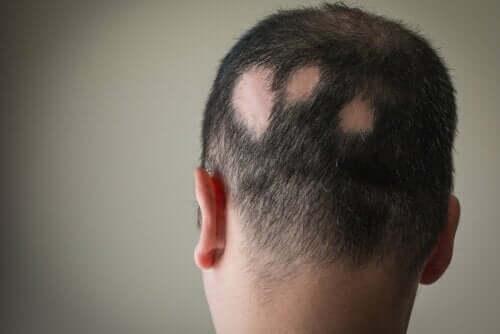 Man med kala fläckar på skallen.