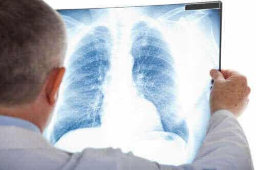 Symtom på atypisk lunginflammation