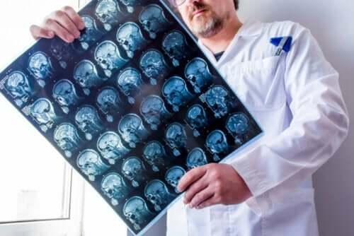 Doktor håller röntgenbild på ett huvud i handen.