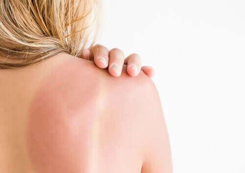 Solskador och erytem: rekommendationer och vård
