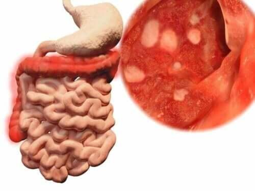 Illustration av magen och tarmarna.