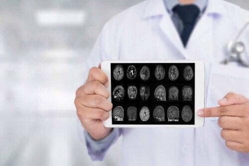 Läkemedlet madopar: läkare visar upp bilder på hjärna