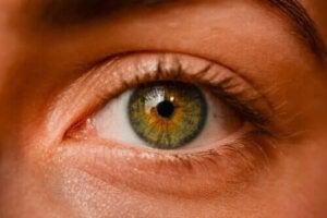 Okulära nevi - Är fräknar i ögonen farliga?