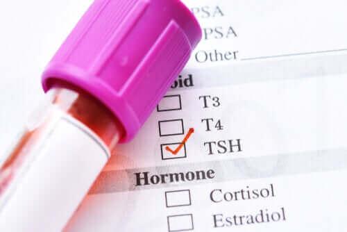 Låga nivåer av sköldkörtelstimulerande hormon