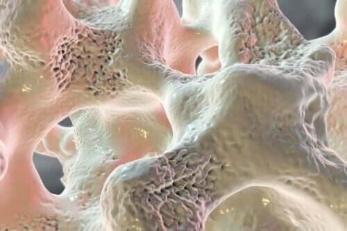 Brist på kalcium kan leda till benskörhet.