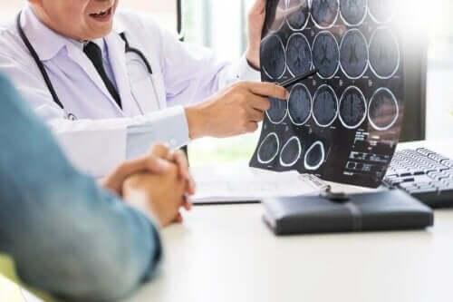 Doktor visar hjärnröntgen för patient.