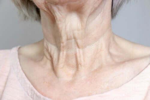 Kvinna med rynkor på halsen.