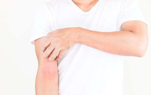 Person med hututslag över kroppen.