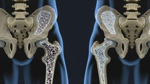riskfaktorerna för osteoporos